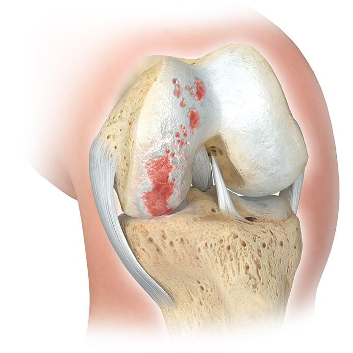Oxford_EMEA_GPbrochure_02_arthritis_partial_flat